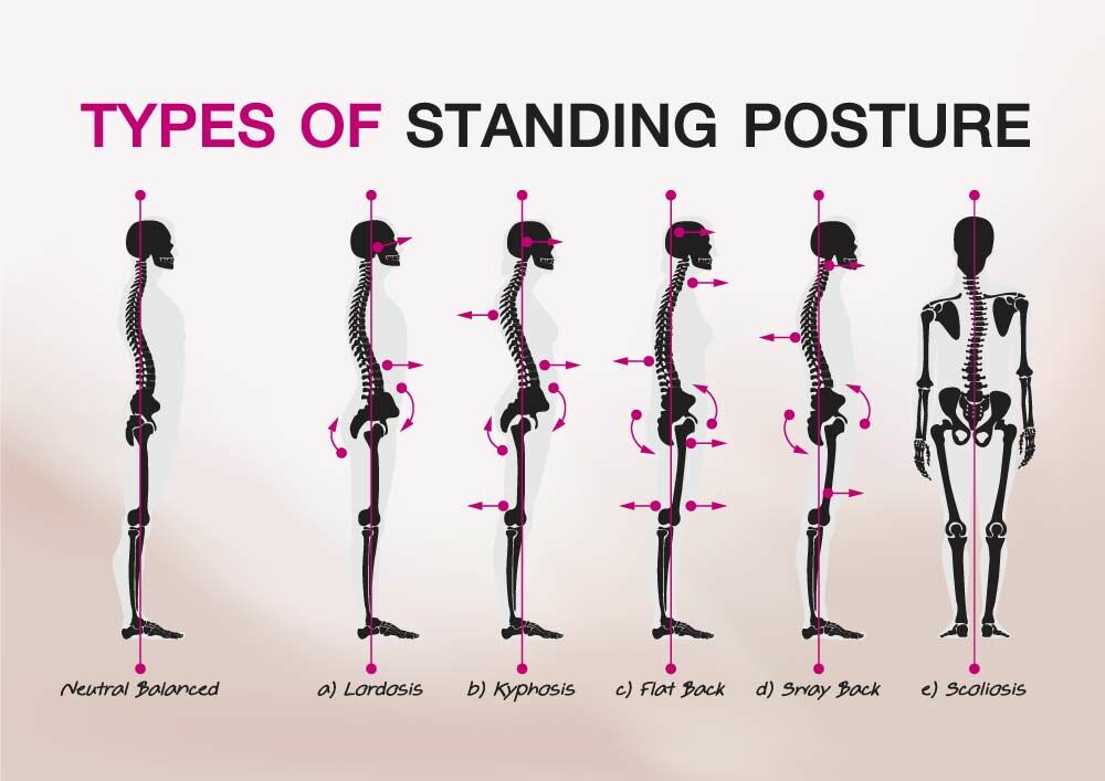 Types of standing posture